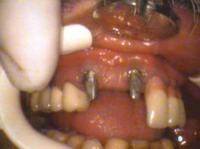 Implants after three months abutments attached in place.